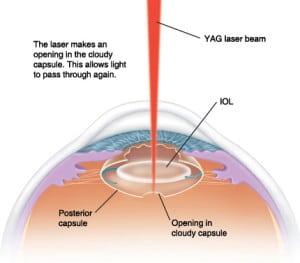 Snead Eye Group Yag Laser Procedure