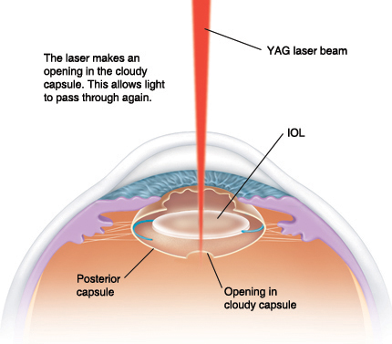 Yag Laser Posterior Capsulotomy Procedure Snead Eye Group