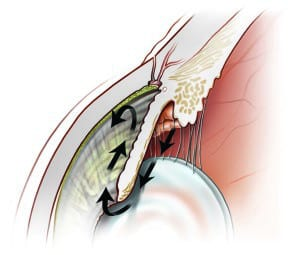SLT-for-Open-Angle-Glaucoma-Image