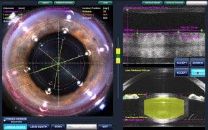 LenSx Femtosecond Laser