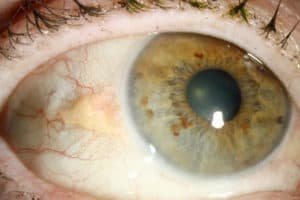 pinguecula eye disease