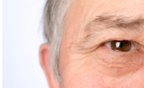 Droopy Eyelid Surgery in Southwest Florida