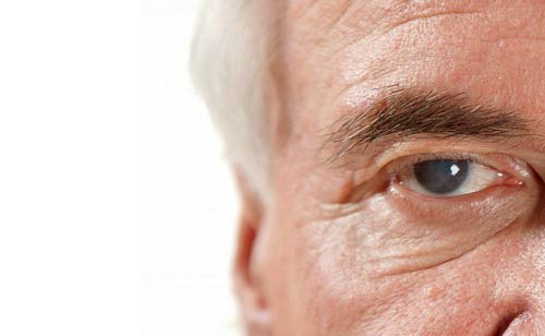What are Cataracts and how to cure them?