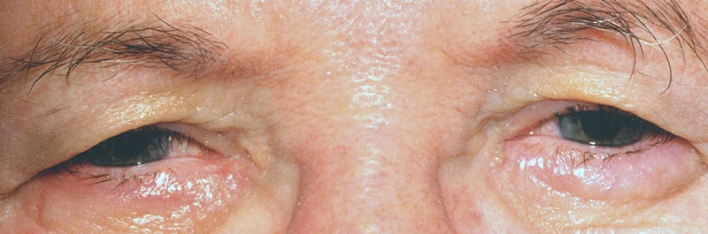 Before Eyelid Surgery at Snead Eye Group